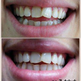Śnieżnobiały uśmiech – przed i po 7 dniach Crest, Whitestrips Supreme